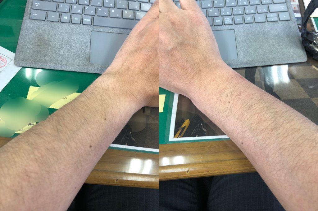 右手 左手 腫れてます 蜂 刺された 奈良 オークホーム